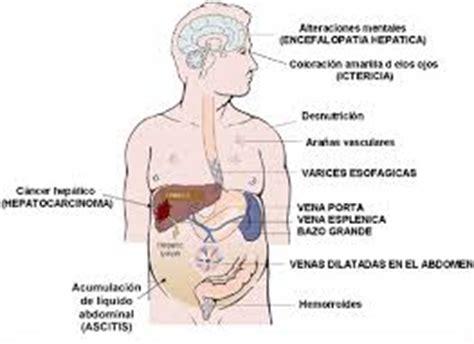 10 síntomas que te dicen que el hígado no está bien