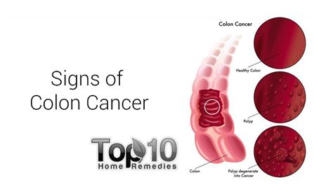 10 Warning Signs of Colon Cancer You Shouldn't Ignore ...