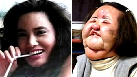10 Worst Plastic Surgeries Disasters - YouTube