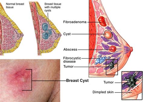 1000+ images about Breast Cysts/Breast Cancer or signs of ...
