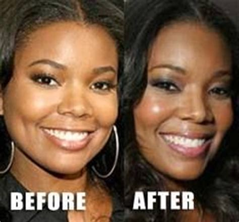 1000+ images about Celebrity Plastic Surgery on Pinterest ...