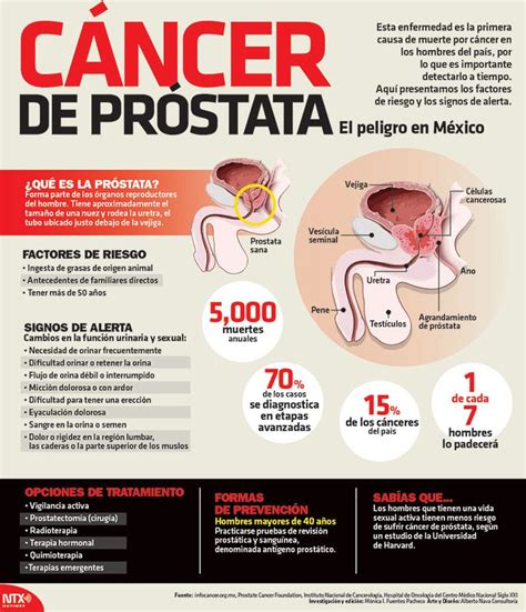 1000+ images about Urología on Pinterest   The two, Salud ...