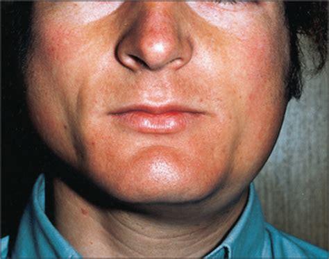 14: Salivary gland disease | Pocket Dentistry