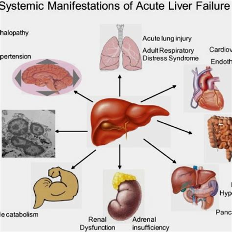24 best images about End Stage Liver Disease on Pinterest ...