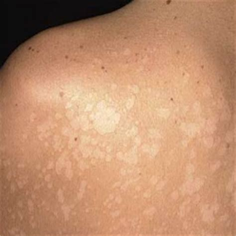 5 Effective Ways To Prevent White Skin Spots   Tips For ...