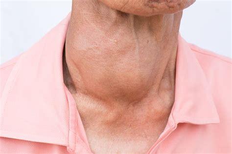 5 síntomas de que padeces hipertiroidismo