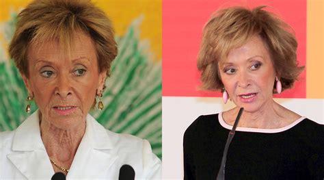 50 famosos, antes y después de la cirugía - Chic