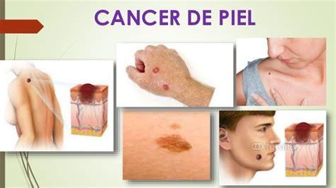 7 Primeros síntomas de cáncer que el 90% de personas ...
