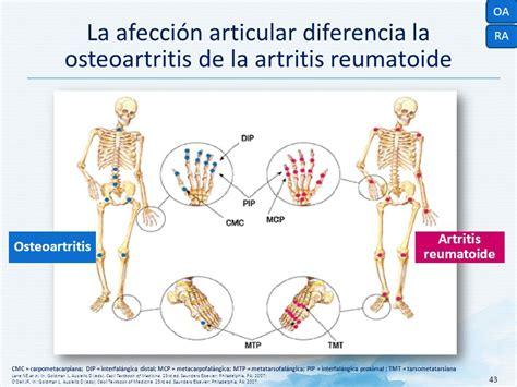 83+ [ Diferencias Entre Artritis Y Artrosis ] - Me Duelen ...