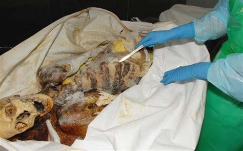 A macabra história da ciência forense