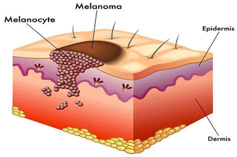 ABCDE: el alfabeto del melanomalunares | melanoma | cancer ...