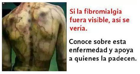 Abre Los Ojos : 100 SÍNTOMAS DE FIBROMIALGIA