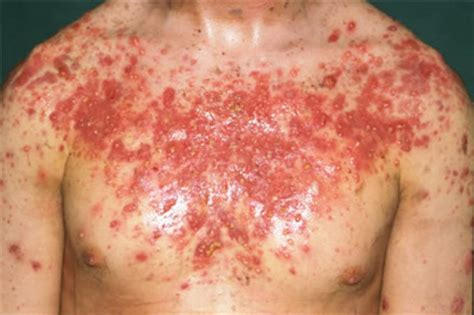 Acne fulminans   Primary Care Dermatology Society   UK