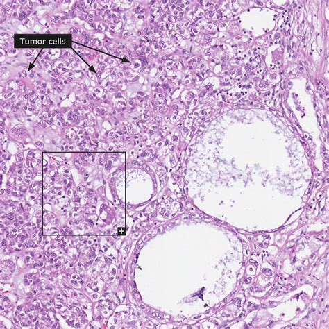 Adenocarcinoma: Ovarian Cancer Adenocarcinoma