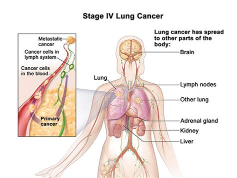 Advances Offer New Hope to Lung Cancer Patients   OSUCCC ...