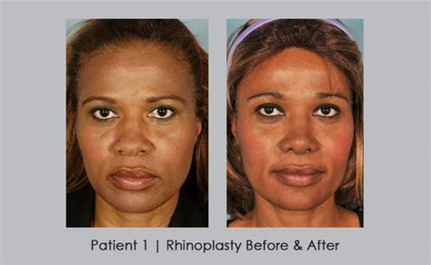 African American Rhinoplasty Atlanta | Before and After ...