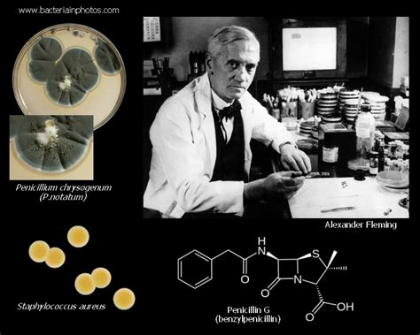 Alexander Fleming and discovery of penicillin. How many ...