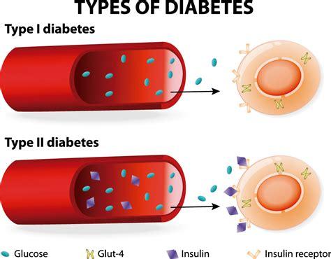 Alianza la diabetes | Tipos de diabetes