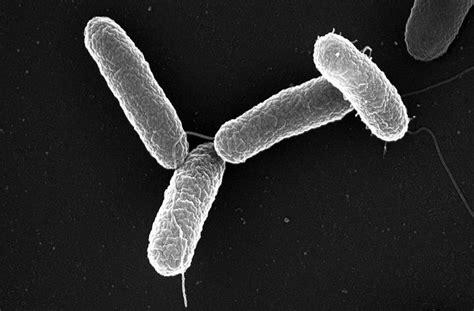 Análisis de ADN identifica la enfermedad que devastó ...