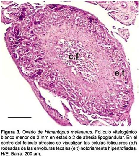 Análisis estructural e inmunohistoquímico de la atresia ...