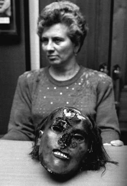 Andrei Chikatilo   Severed head evidence. | The Sick Truth ...