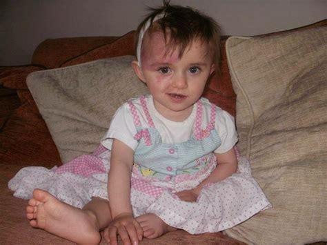 Angelina has Sturge Weber Syndrome; a rare neurological ...