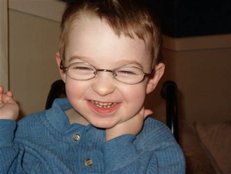 Angelman Syndrome - Pictures, Symptoms, Causes, Treatment ...