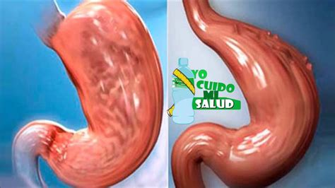 Aprende A Reducir El Estómago De Forma Natural, Sin ...