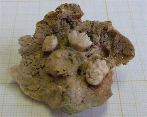 Archaeologists Found a Medieval Body With a Tumor That Was ...