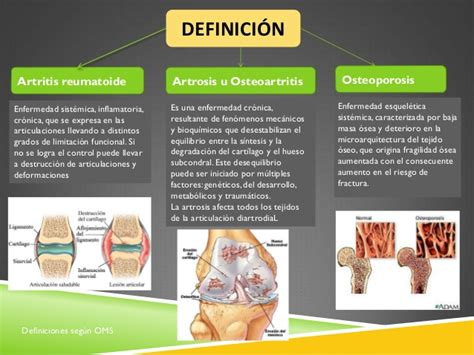 Artritis, artrosis, osteoporosis