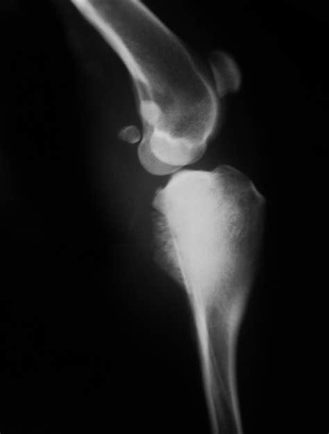 ARTROVET: Tumores óseos