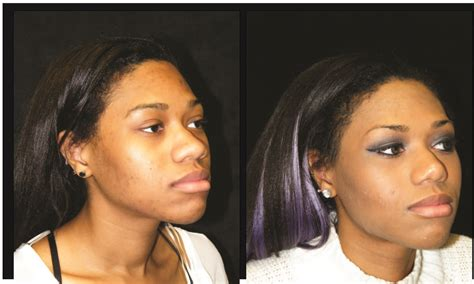 Atlanta Ethnic Rhinoplasty Nose Surgery Before & After Photos