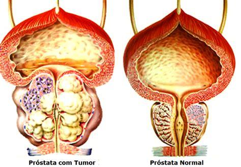 Aula de Anatomia | 5 Mitos e Verdades sobre o Cancer de ...