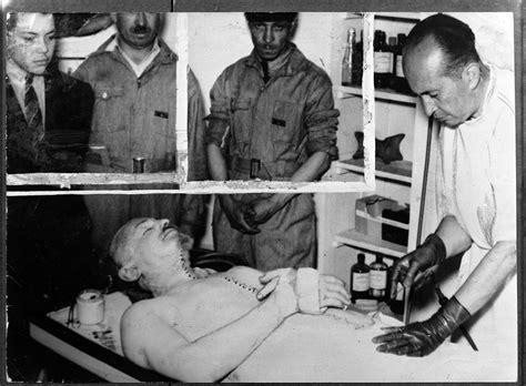 Autopsy photograph of Leon Troysky, who had been ...