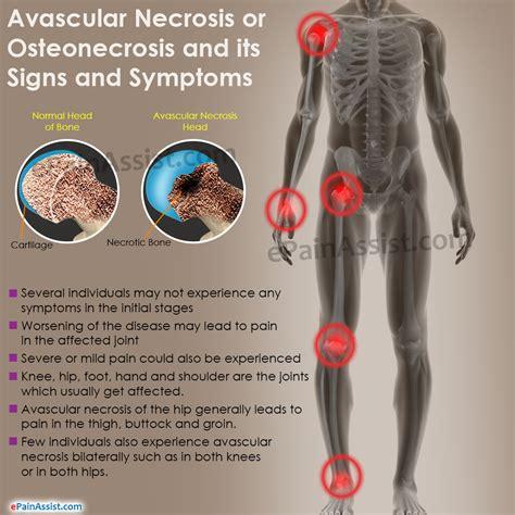 Avascular Necrosis or Osteonecrosis|Types| Epidemiology ...