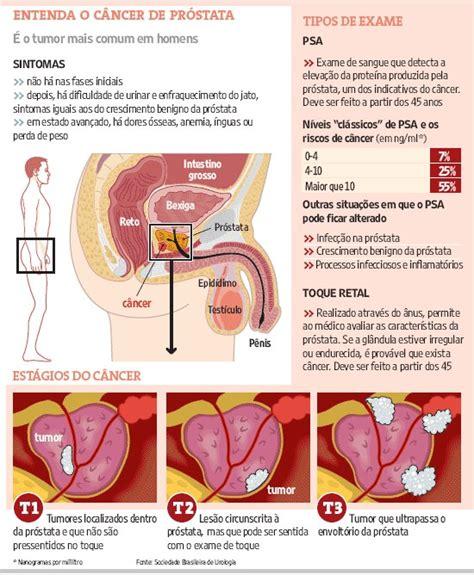 bastião sena: Droga anticalvície pode diminuir risco de ...