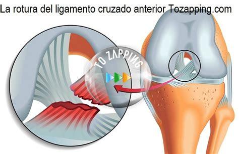 Batido para fortalecer los ligamentos y tendones de la rodilla