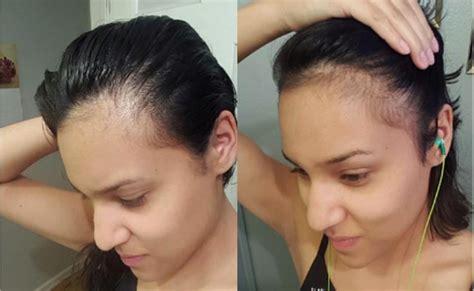 Beneficios de biotina: engrosar el cabello, las uñas y ...