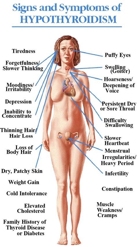 Best 25+ Symptoms of thyroid ideas only on Pinterest ...