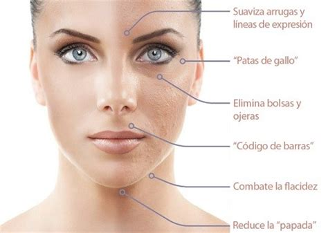 Best Radiofrecuencia Facial Y Corporal Photos 2017 – Blue ...