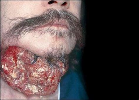 Big Saúde: Câncer de esôfago
