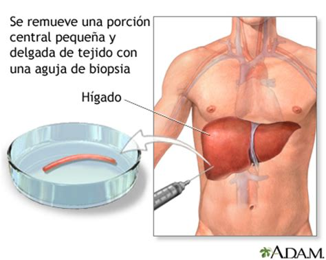 Biopsia de hígado: MedlinePlus enciclopedia médica ...