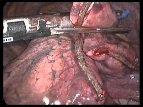 Biopsia pulmonar VATS Lung Biopsy   YouTube
