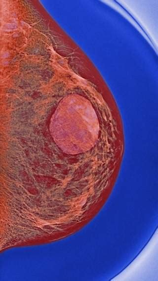 Biopsy all breast cysts? - The Clinical Advisor