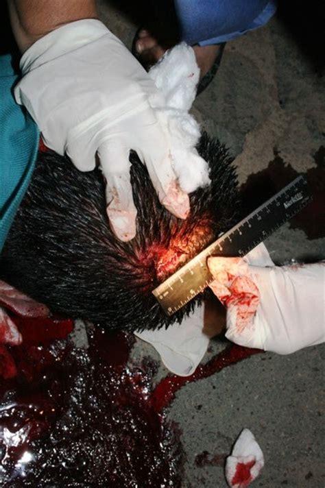 biotecnologia y medicina forense: agosto 2012