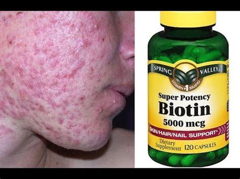 Biotin! BAD Breakouts & Side Effects - YouTube