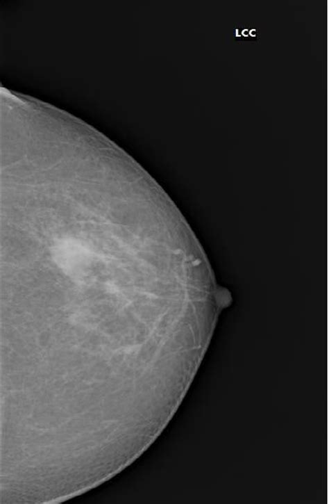 BIRADS II lesion: simple breast cyst   Image   Radiopaedia.org