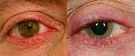 Blefaritis; inflamación o infección de párpados - Barraquer