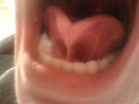 Blocked salivary glands under tongue   What Does the ...