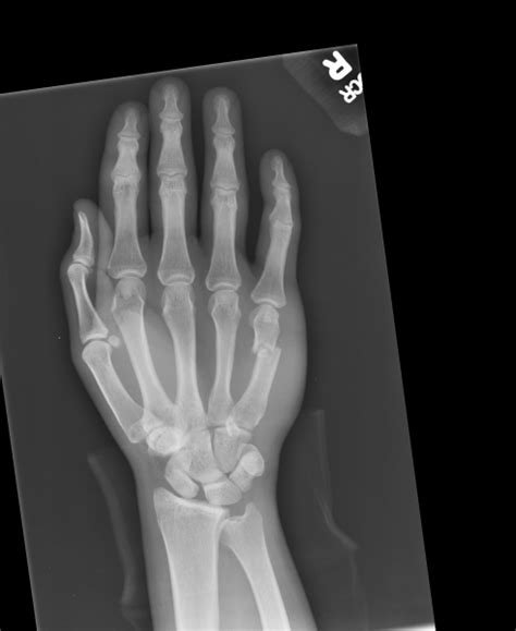 Boxer's Fracture - 5th metacarpal - radRounds Radiology ...